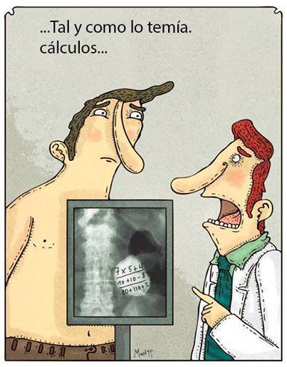 Tal y como temía cálculos